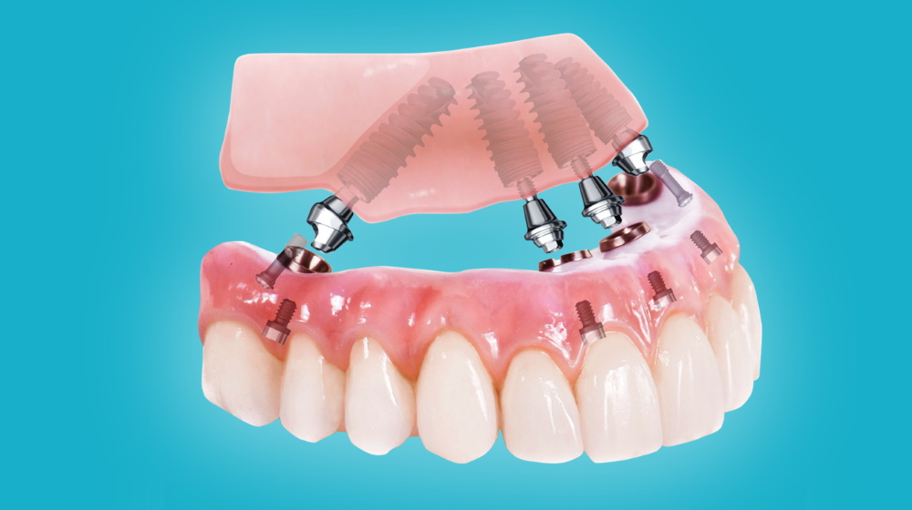 All-on-4 имплантация и протезирование зубов