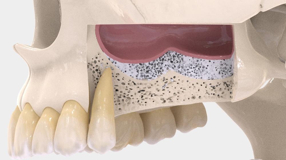 Имплантация при атрофии костной ткани
