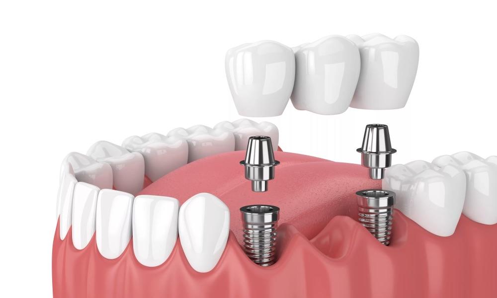 Имплантация нескольких зубов подряд