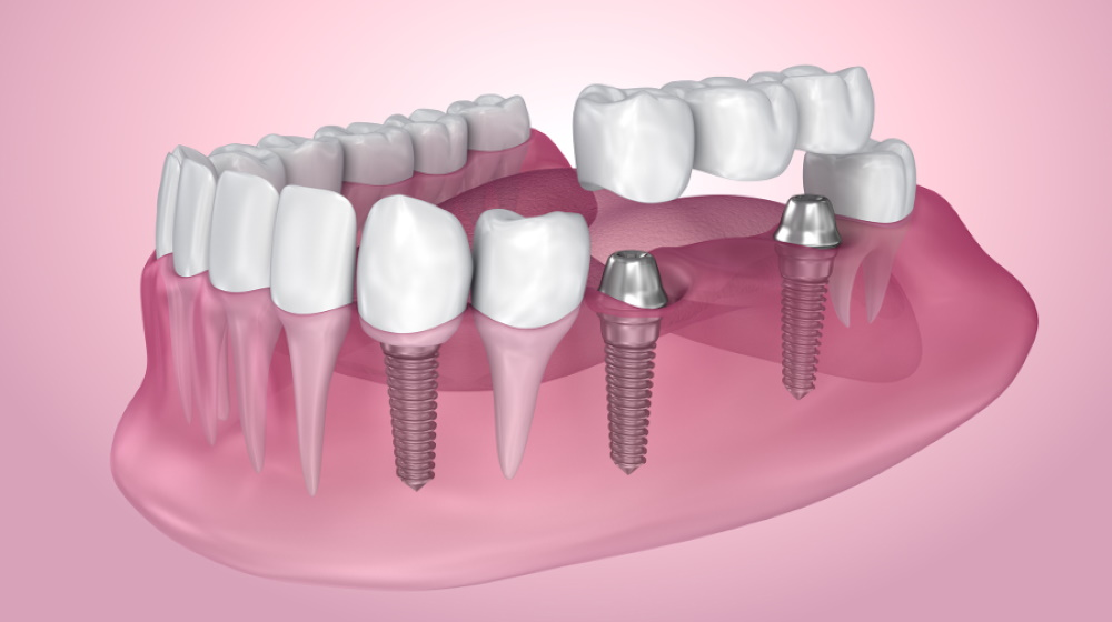Имплантация жевательных зубов