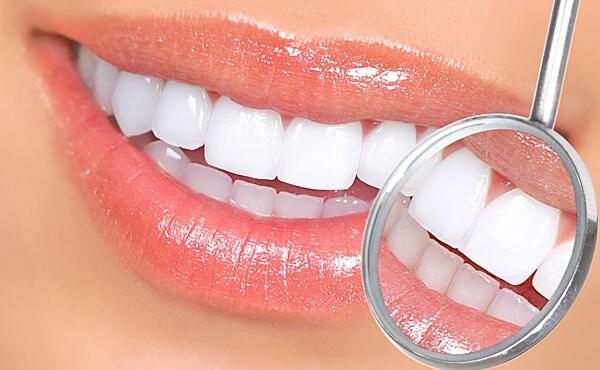 Зубные коронки из металлокерамики на имплантах: что важно знать