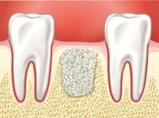Наращивание челюстной кости: 5 основных способов