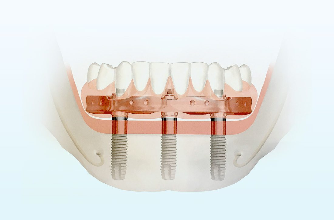 Имплантация Trefoil (All-on-3) для нижней челюсти: общие аспекты и особенности