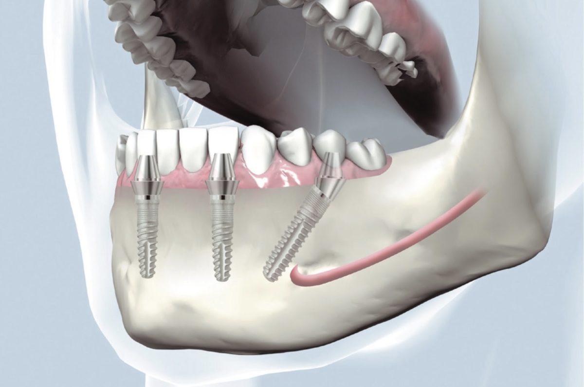 Полная имплантации нижней челюсти