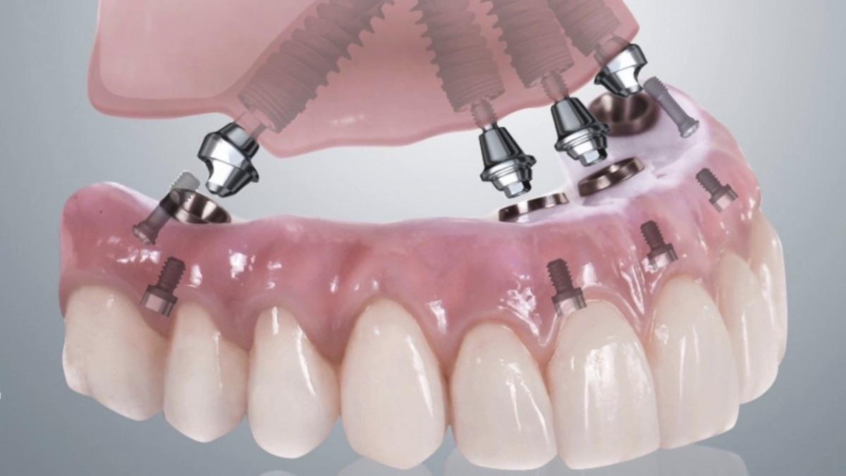 Имплантация верхней челюсти