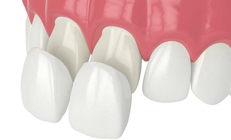 Люминиры на зубы: что это такое?