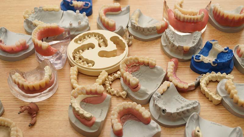 Протезирование зубов: виды, отличия и особенности