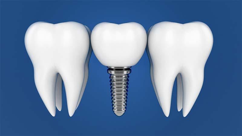 Имплантация одного зуба - методы, производители, материалы и средние цены